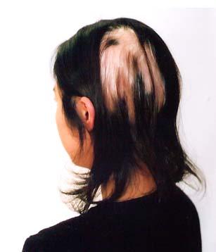 ウィッグ髪型例 医療用ウイッグ 装着前写真