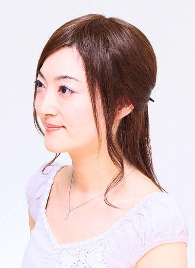 円形脱毛症で前髪を分けたい